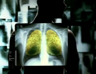 Το σφουγγάρι, τα πνευμόνια, το τσιγάρο και η πίσσα.